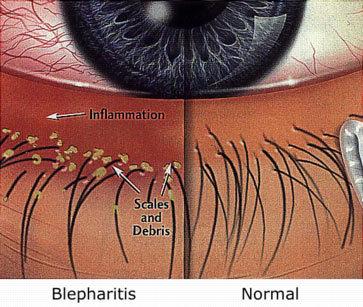 Blepharitis-compare